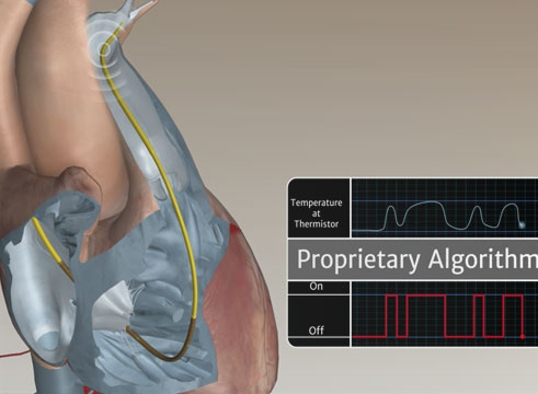Swan-Ganz™ Catheter Continuous Cardiac Output Animation