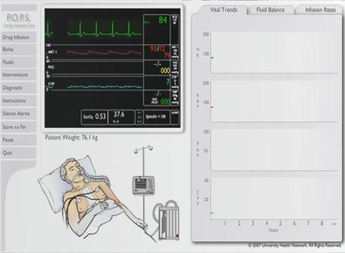 POPS Online Simulation