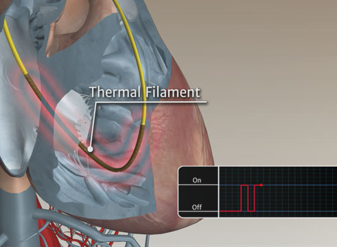 Swan-Ganz™ Catheter Continuous End Diastolic Volume Animation