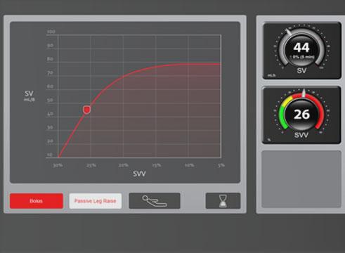 Fluid Response Simulator
