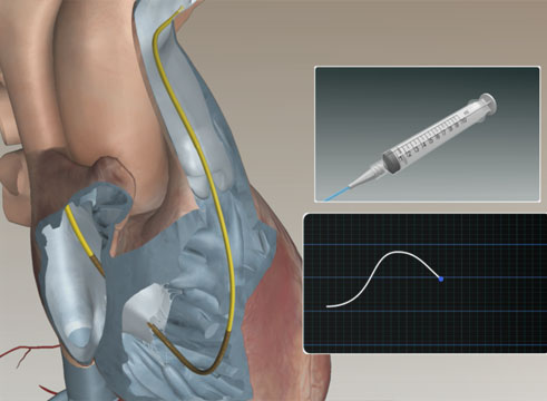 Swan-Ganz™ Catheter Bolus Cardiac Output Animation