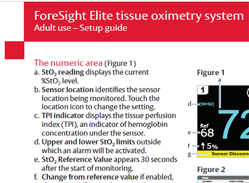 ForeSight Elite Tissue Oximetry System Setup Guide