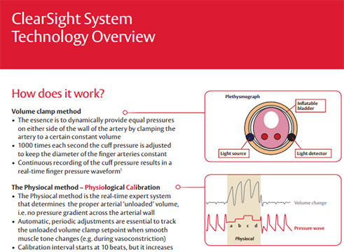 ClearSight™ System Technology Overview